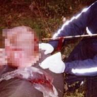 【グロ画像】動物ハント中にクロスボウの矢が頭に刺さったら・・・