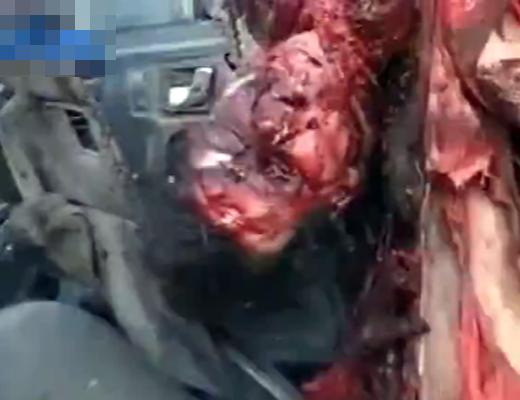 【閲覧注意】身体に触っただけで崩れ落ちるボロボロの人間