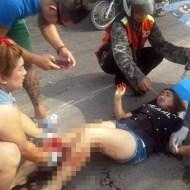 【閲覧注意】ホットパンツでバイクに乗ってた女性が事故った結果・・・