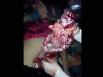 【閲覧注意】赤ちゃんが死産したからこれから腹切り裂いて引っ張り出す・・・