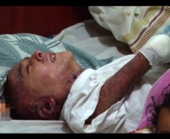 【グロ動画】重度の大火傷を負ってなんとか生存できた女の子に密着取材してみた