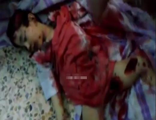【グロ動画】戦争で犠牲になるのは子供というのがよく分かる女の子の爆死死体 ※閲覧注意