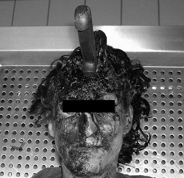 【グロ画像】ナイフで頭刺された人のレントゲン写真が怖すぎる・・ ※閲覧注意