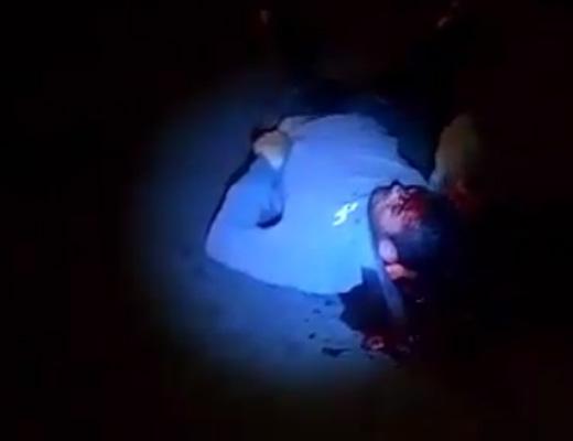 【グロ動画】頭割れて血まみれで瀕死の人間が自分の頭をひたすら掻きむしってる???? ※閲覧注意
