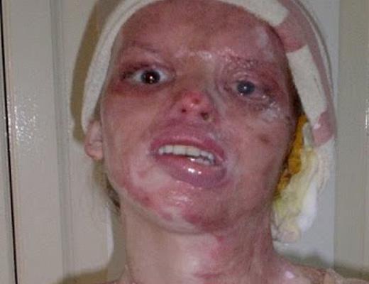 【衝撃映像】元嫁の顔面に塩酸ぶっかけて二度と外歩けなくしてやってぜぇ ワイルドだろぅ~ by元夫