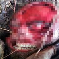 【閲覧注意】山で顔がベロンの剥がれた男性が発見される・・想像以上に綺麗に剥がれててビビった