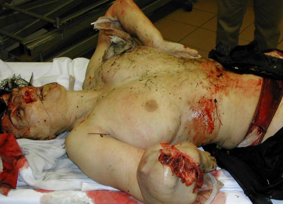 【本物 拷問】ま●こ血まみれ刺されてる?レ●プ拷問されたんじゃないかって思える女性死体・・・ ※グロ画像