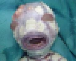 【グロ画像】生まれてきた子どもが皮膚が剥がれ落ちる「魚鱗癬」を患っていたら・・・ ※閲覧注意