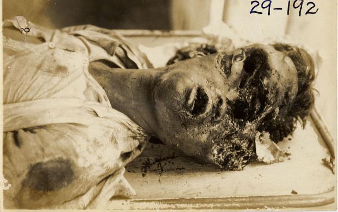 【グロ画像】フィリピンの遺体安置所で働いてるけど質問ある???