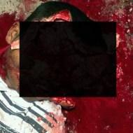 【グロ画像】顔これ06~顔面グロ死体これくしょん~【画像13枚】
