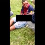 【グロ動画】花火で遊んでたら爆発して少年が真っ赤に染まる・・・ ※閲覧注意