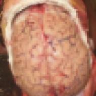 【グロ画像】頭の中身を詳しく知りたいからはこちら ※超閲覧注意