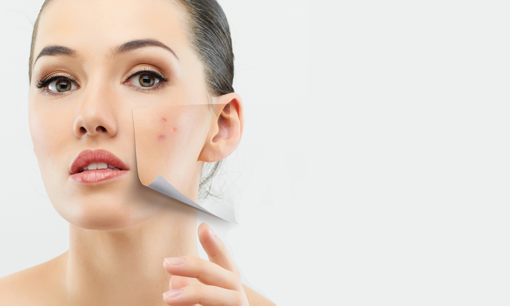 How Many Public Holidays In Nz 2014 Netherlands Public Holidays 2018 Europeeu Qppstudio Up To 94 Off Diamond Peel Facial From Rm38