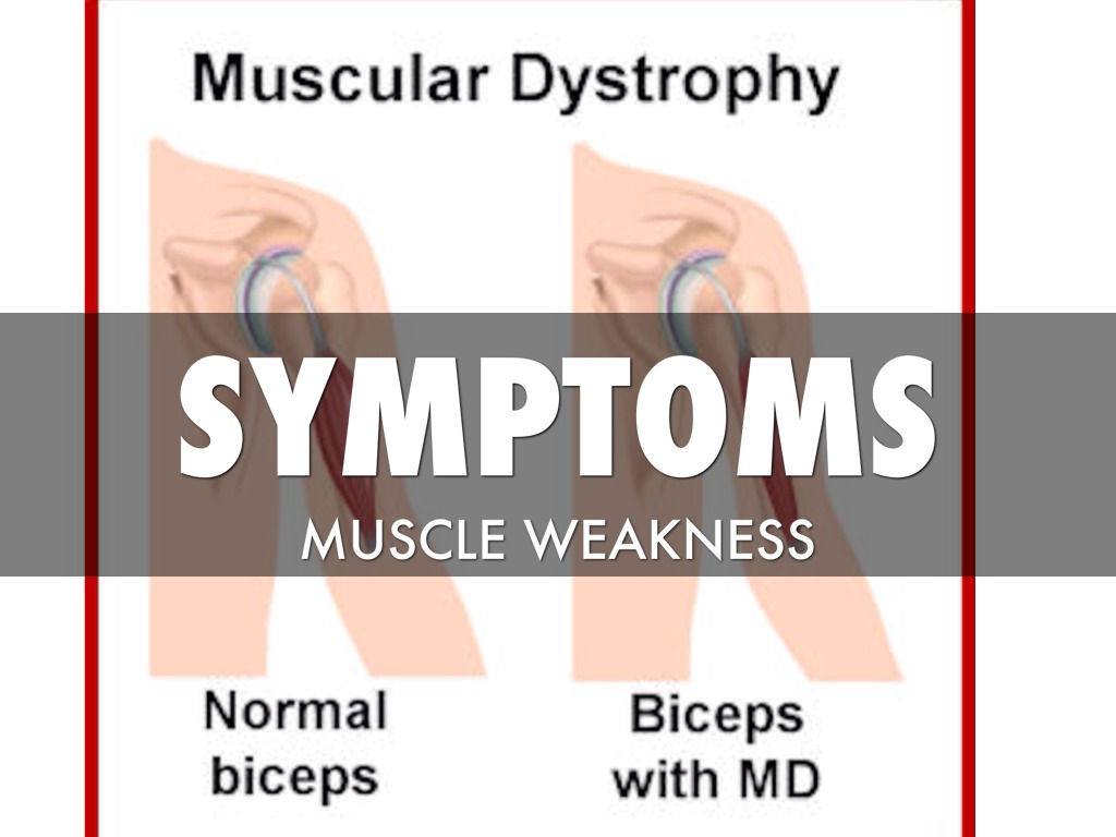Delayed Diagnosis Of Duchenne Muscular Dystrophy Duchenne Muscular Dystrophy Disease By Austin Banzon