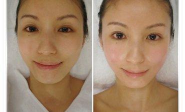 <療程>做完肌膚馬上亮一個色號! 凱緹美顏。