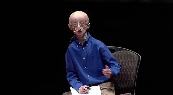 """17歳で""""老衰死""""した早老症の少年が遺した、幸せに生きるための3つの哲学"""