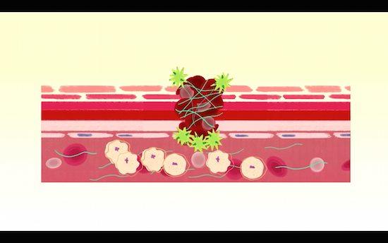 皮膚結合組織