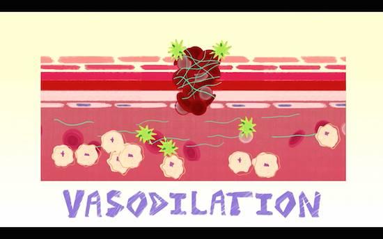 血管拡張(VASODILATION)