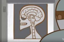 記憶の仕組みの解明に貢献した、世界一調査された脳