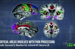 鎮痛剤は他人への共感も減らしてしまう?