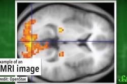ただのトリックではない「催眠術」 かかりやすい人の脳には特徴があった