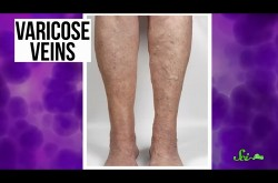 肥満の人は要注意! 「下肢静脈瘤」の原因と危険性