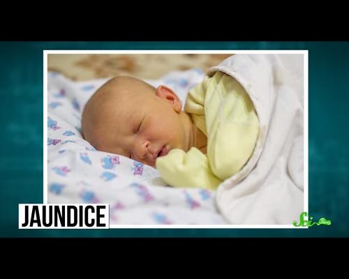 赤ちゃんの肌が黄色くなるのはなぜ? 「新生児黄疸」について解説