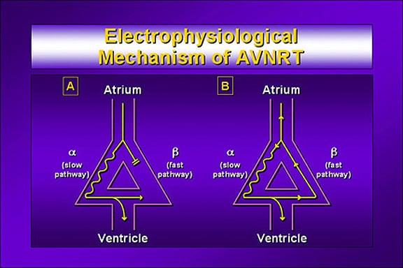 AtrioVentricular Nodal Reentrant Tachycardia (AVNRT) Causes