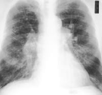 Frontal chest radiograph in same patient as in Im...