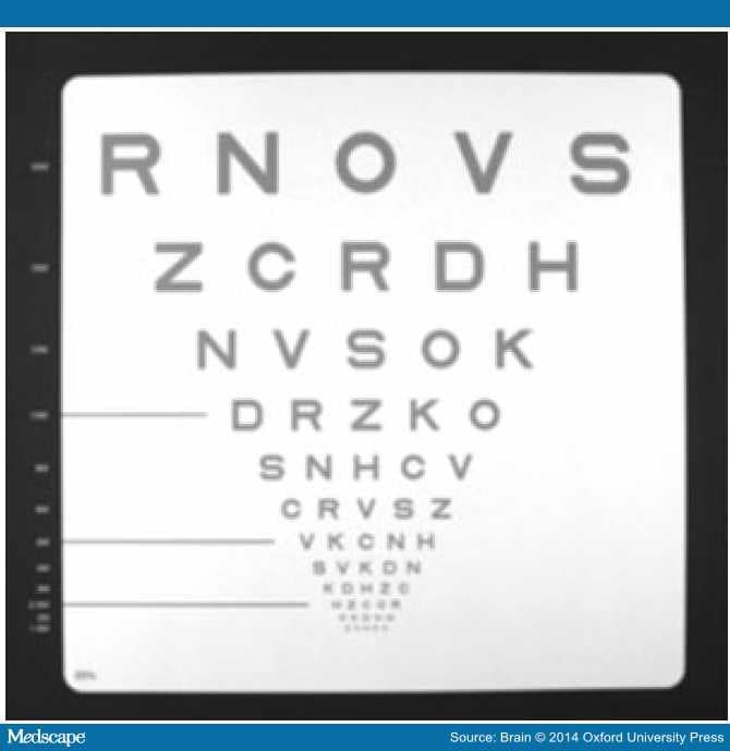 Vision and Vision-related Outcome Measures in MS