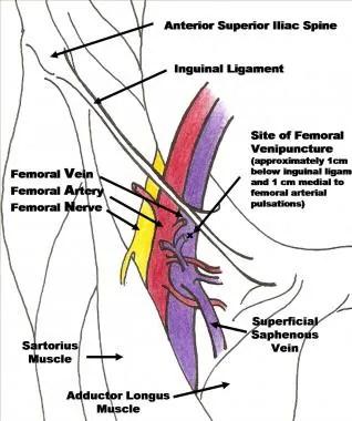 Femoral Central Venous Access Technique Femoral Vein Cannulation - femoral triangle