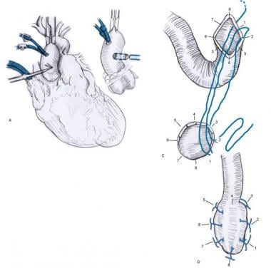 Coronary Artery Bypass Grafting Technique Approach Considerations