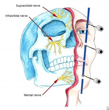 How is a mandibular nerve block administered for pain management?