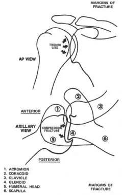 labrum diagram
