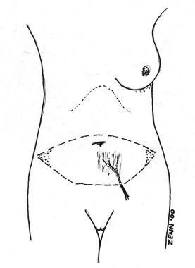 chest area diagram
