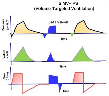 Mechanical Ventilation Background, Classifications of Positive