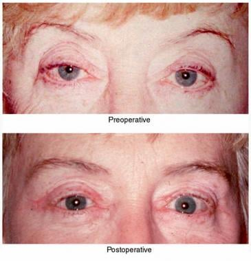 Upper Lid Ptosis Blepharoplasty Treatment  Management Surgical - ptosis surgery