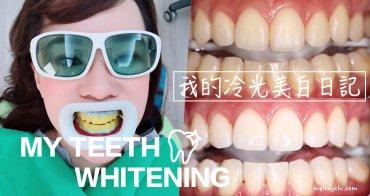 【美白】我的牙齒美白日記。冷光美白 用一小時的休息時間,給我ㄧ口白帥帥、亮晶晶的牙齒!
