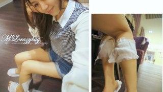 [醫美] 又來拔蘿蔔了♥小腿肌肉掰掰
