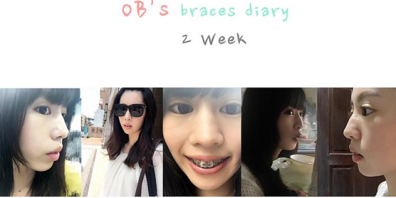 牙套 ♪  全方位矯正 第二、三週牙套日記 習慣牙套、拔兩顆牙