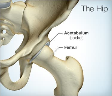 Hip Replacement Surgery Purpose, Procedure, Risks, and Recovery