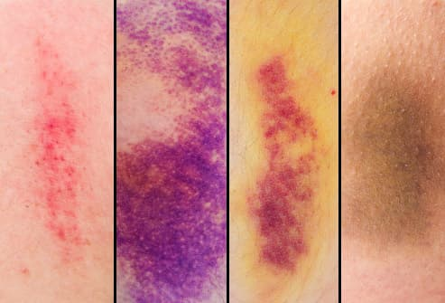 Bruises in Pictures What the Black and Blue Is Telling You