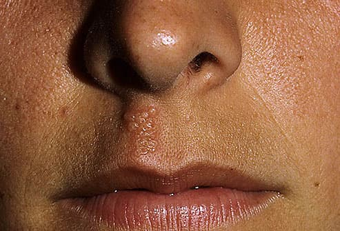 Is Cold sore dried herpes? 3