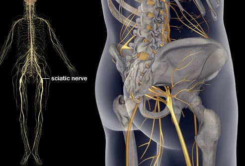 princ_rm_photo_of_sciatica_illustration fat neck ties erieairfair