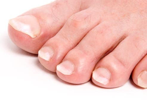 Foot Problem Pictures Sore Feet Heel Pain And More With