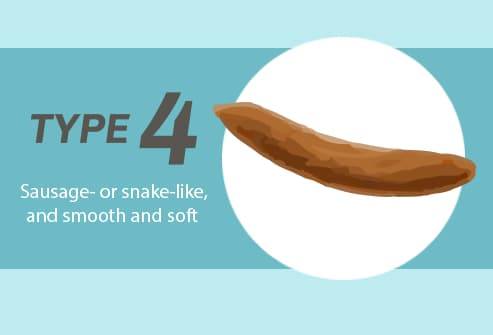 Poop Slideshow What Its Shape, Size, and Smell Say About Your Health - stool color chart