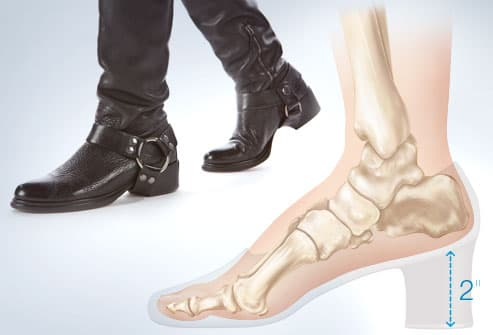 Worst Shoes For Your Foot Health And Beauty With Pictures
