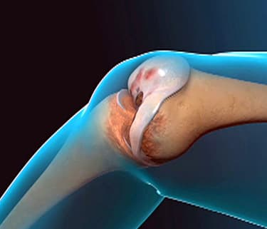 Animated Bear Wallpaper Total Knee Replacement Video Animation Watch Webmd Video