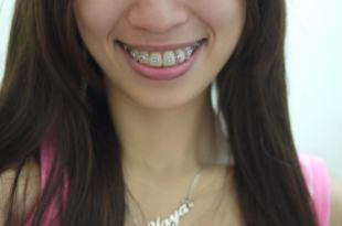 Yaya牙套日記|牙套姊妹們~請每天說:「我是牙套妹,我很正!」