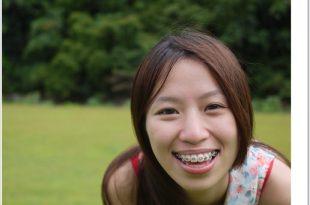 Yaya牙套日記|戴牙套的五大優點